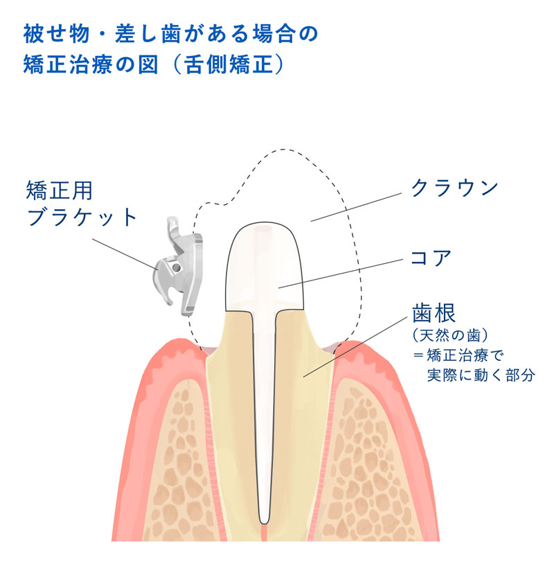 セラミック単冠と支台歯イラスト