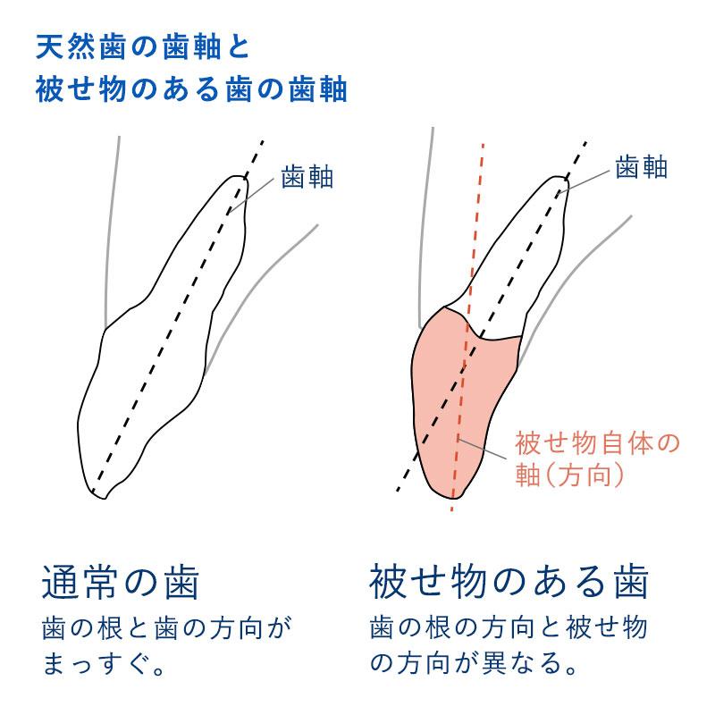 歯軸 イラスト