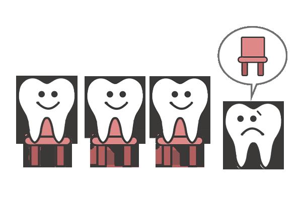 矯正の抜歯イメージ